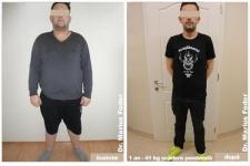 Micșorare stomac - scădere ponderată 41 de kg