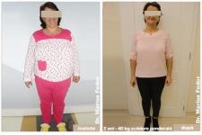 Micșorare stomacală - slăbire 40 de kg