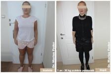 Slăbire prin chirurgie bariatrică - 30 de kg