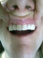 Reconstrucție dentară Lorimed după