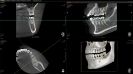 Tomografie computerizată CBCT