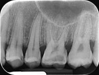 Radiografie retroalveolara