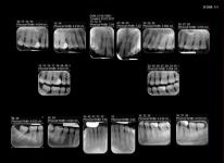 Status bi-maxilar
